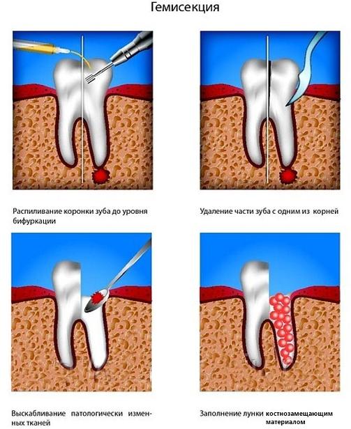 Что делать если зуб удалили корень остался